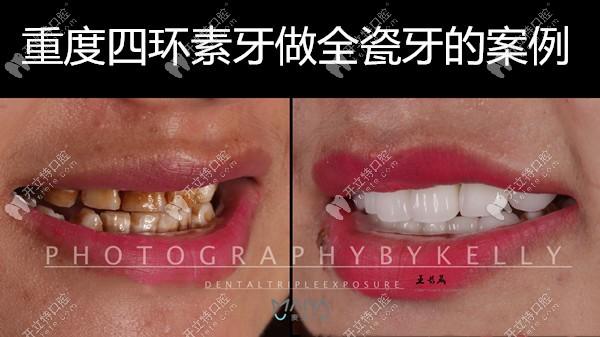 深圳麦芽口腔王长晟医生的全瓷牙案例