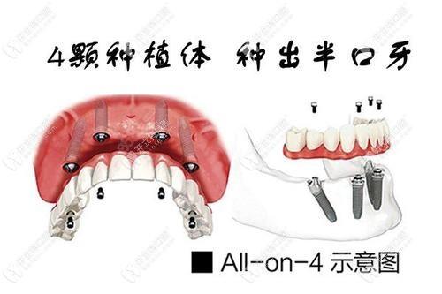 all-on-4种植牙示意图