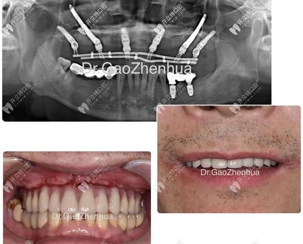 种植牙失败后他从广州飞上海再次做了VIIV穿颧穿翼植牙手术