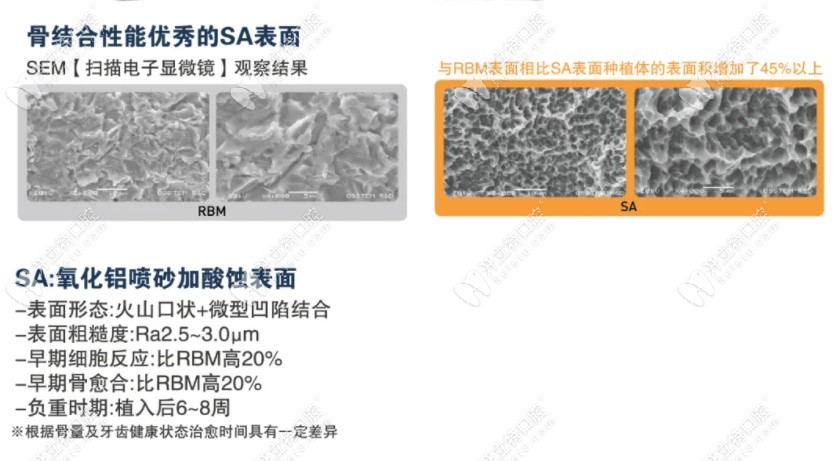 奥齿泰ts3 SA植体表面处理和过去对比
