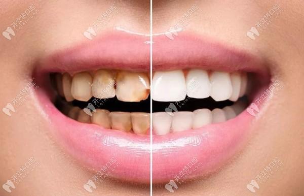 瓷优健与瓷倍健全瓷牙哪个好