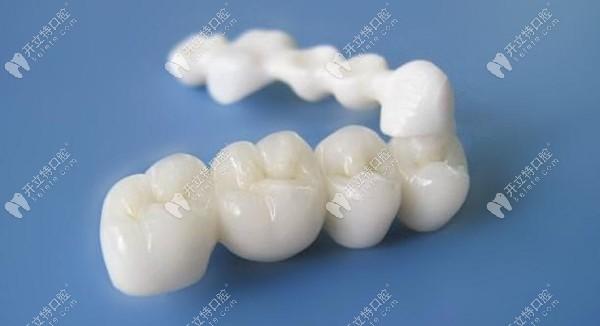 瓷优健与瓷倍健全瓷牙区别