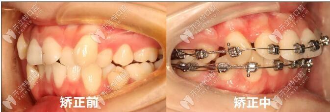 陈医生牙齿拥挤戴自锁托槽矫正案例