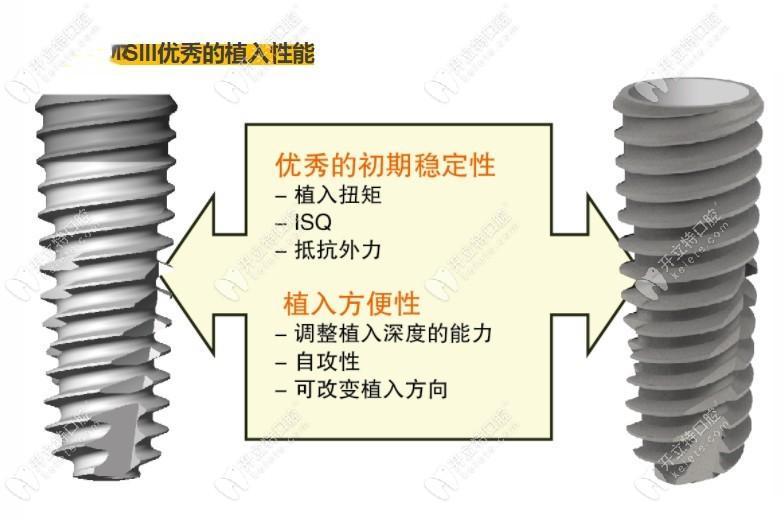 韩国奥齿泰ts3 SA植体设计上的优势