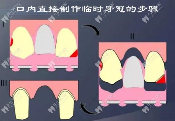 临时牙冠口内直接制作的步骤