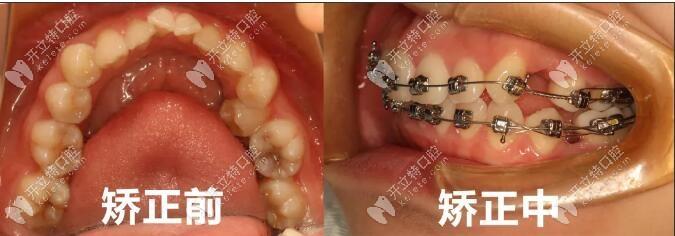 陈库正畸医生牙齿矫正案例一