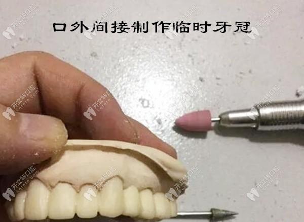 口外间接制作临时牙冠