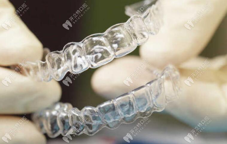 隐形牙套实图