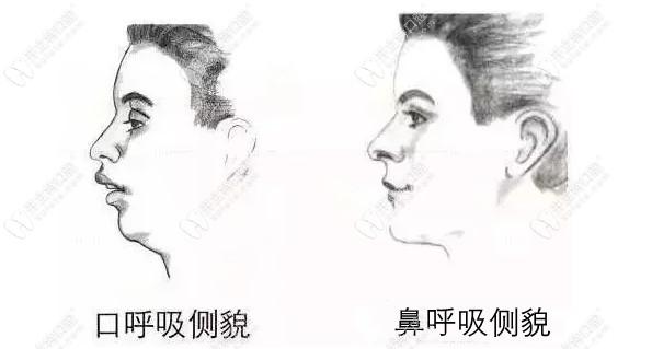 口呼吸和鼻呼吸的侧貌对比