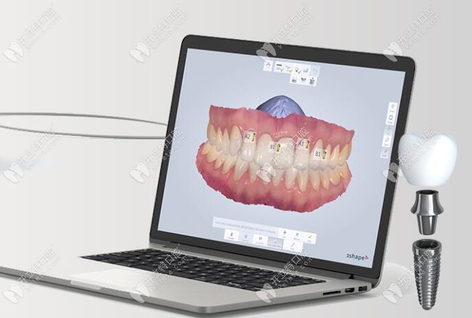数字导板导航种植牙