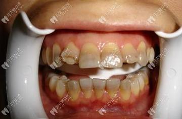 重度四环素牙