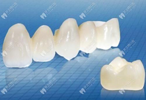 美国3m拉瓦全瓷牙