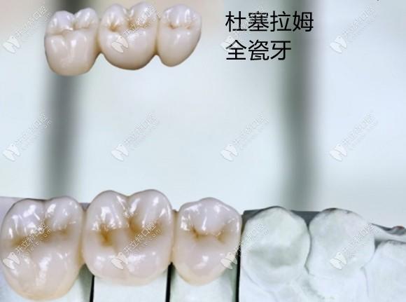 德国杜塞拉姆乐瓷氧化锆全瓷牙好还是威兰德好,你猜对了吗