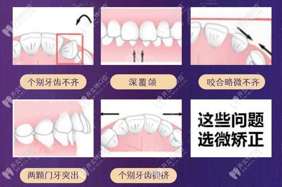 美加牙齿矫正的适应症状