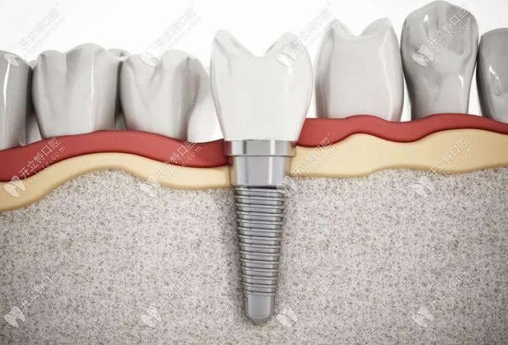 柏德口腔种植牙牙体模型