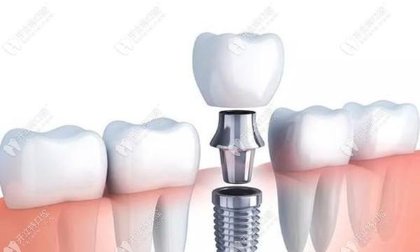 瑞士士卓曼ITI种植牙费用