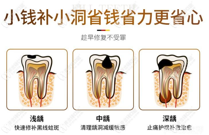 广州天河柏德口腔补牙优惠