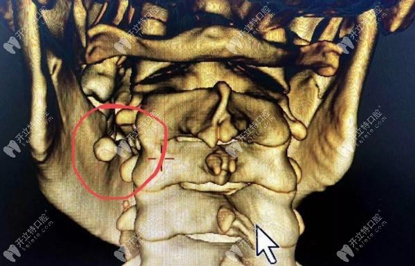罕见的涎石症也会引起口腔下颌肿胀、疼痛
