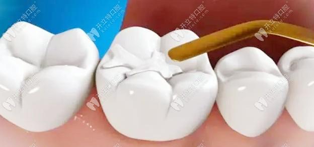 又问美国进口3M树脂补牙的价格?z350与250多少钱都在这了!