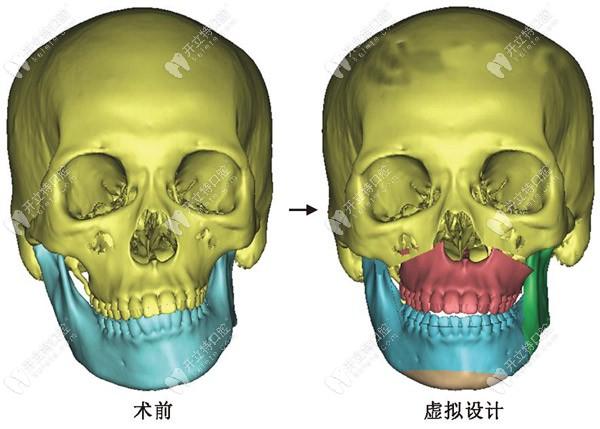 上海哪个医院做正颌手术好,选个厉害的颌面外科医生很关键