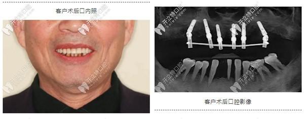 典型重度牙周炎种植案例:如何实现即刻种植与即刻修复?