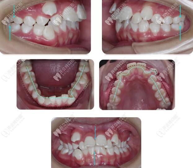 分享:直丝弓矫治前牙深覆盖(安氏Ⅱ类错颌畸形)的案例效果