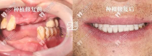 数字化种牙进行中:采用诺贝尔allon6+4全口即刻负重技术