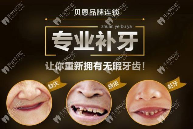 想造扬州贝恩口腔补牙多少钱?树脂和嵌体补牙的价格这都有