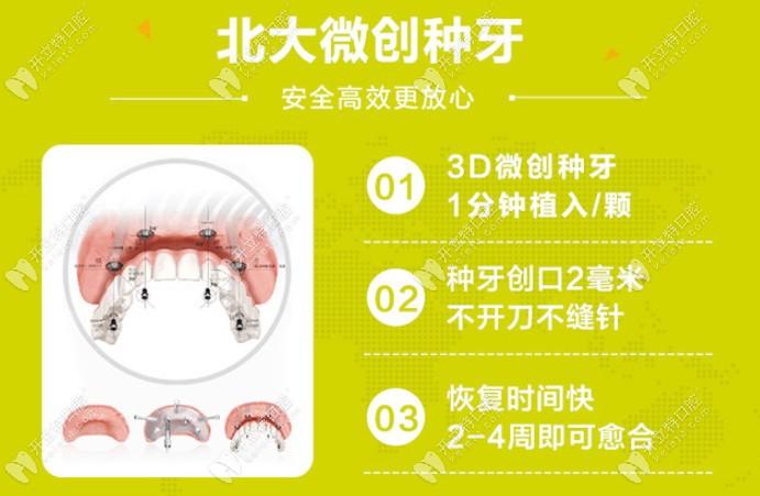 固德口腔种植牙优势
