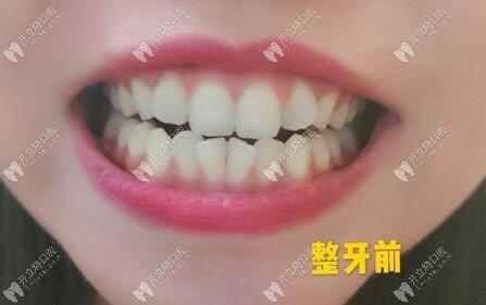 真的!下门牙排列不齐戴陶瓷半隐形托槽矫正牙齿10个月就OK喽