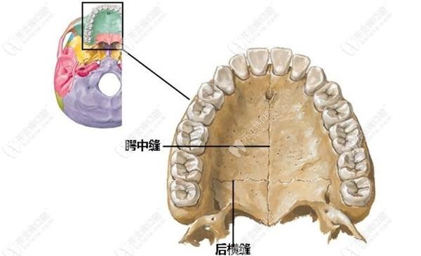 mse骨性扩弓技术针对于成人上颌扩弓的效果如何?