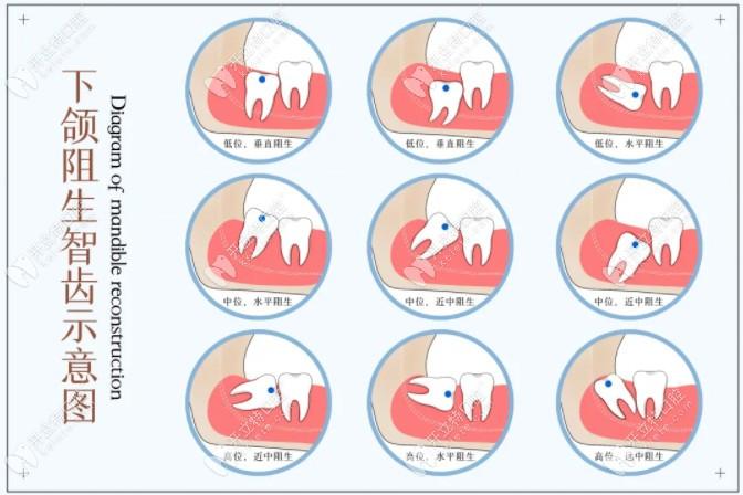 不同位置的智齿分类