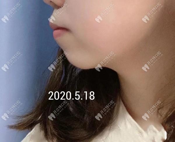 重庆华美口腔丁爱军医生矫正骨性龅牙嘴凸效果怎么样?