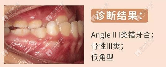 10岁宝贝的骨性3类地包天,替牙期戴矫正牵引器6个月变化明显