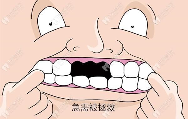 赚大了!上海维佳康的韩国登腾种植体+钴铬烤瓷牙冠才3999元