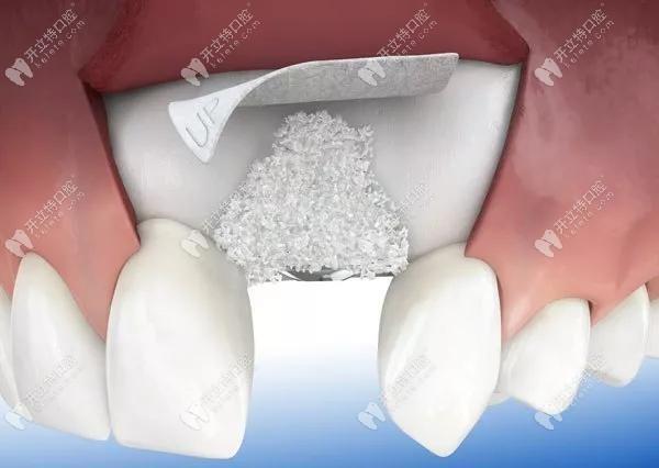 国产骨粉骨膜与进口的区别除了价格,材料和品牌差异也不小