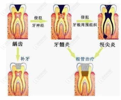 龋齿的治疗方法