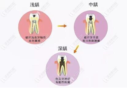 龋齿发展过程