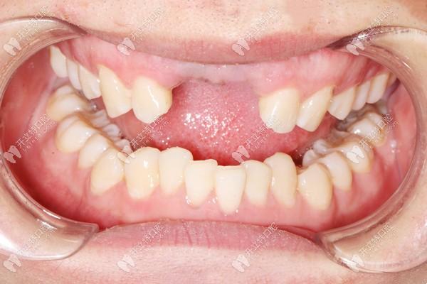 上门牙缺失两颗,在广州荔湾穗华口腔做了前牙美学种植修复