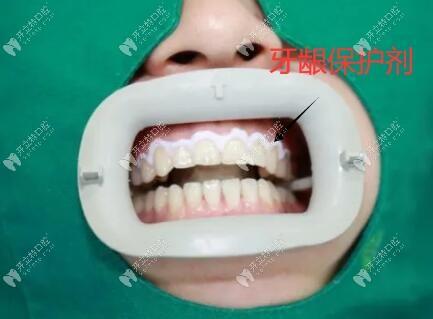 牙齿美白涂抹牙龈保护剂